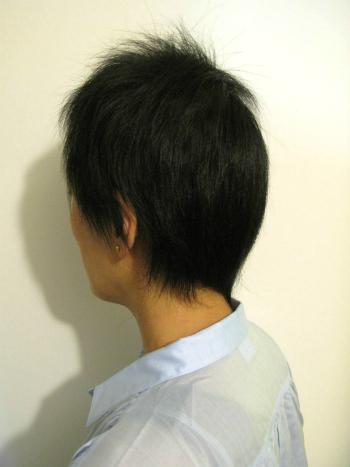 全頭型 円形脱毛症