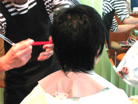 円形脱毛症 2年2ヶ月