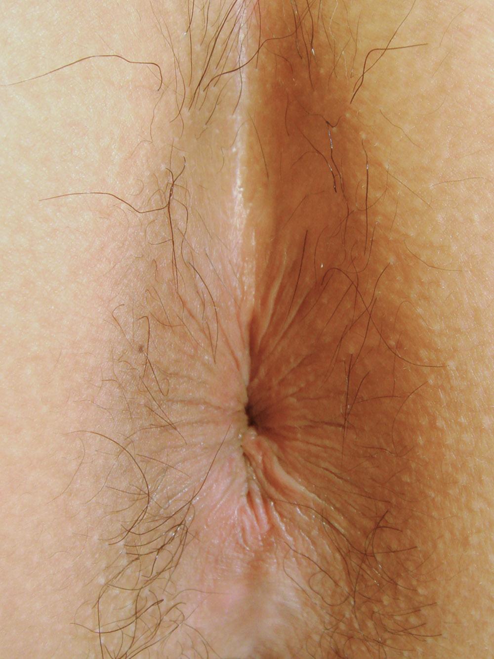 【アナル】お尻の穴がパックリ丸見えな無修正の肛門画像 28