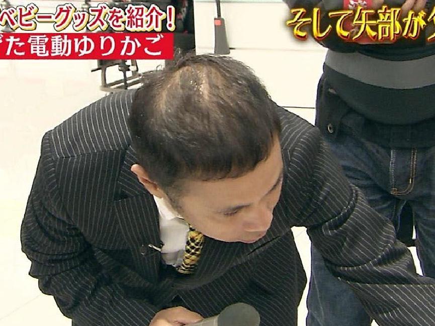 岡村隆史の頭皮がヤバイ