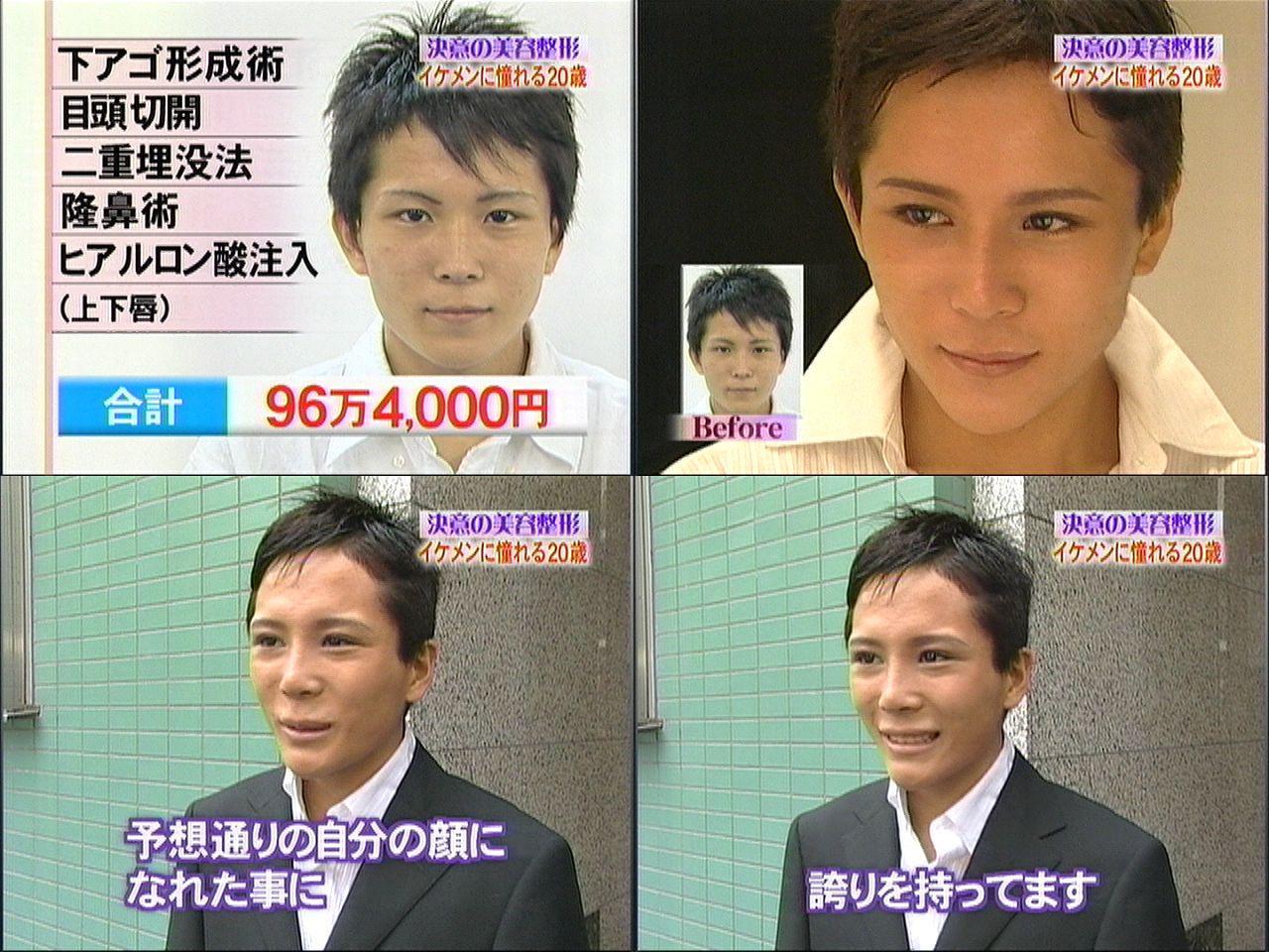 ビューティーコロシアムで整形した男(96万4,000円)整形後の顔が酷い