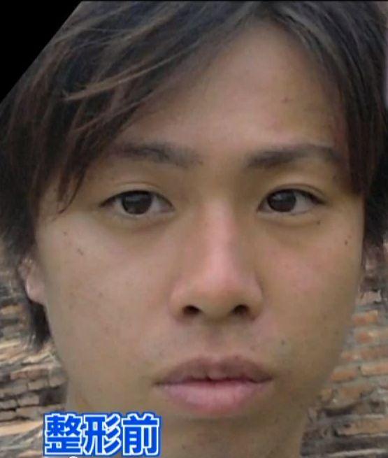 整形男子アレンの整形前の顔