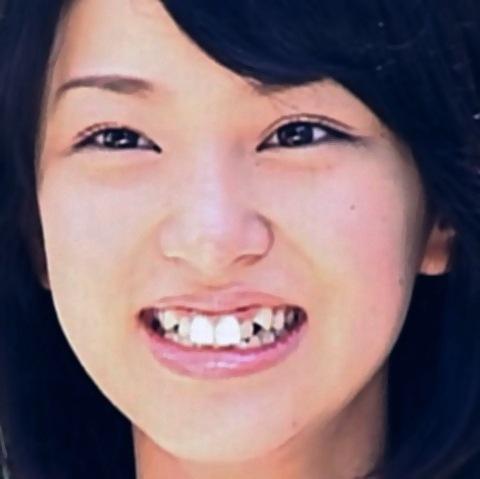 歯並びを矯正する前の武井咲