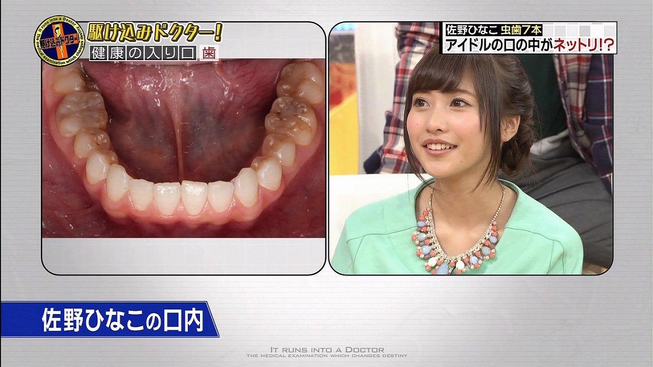 駆け込みドクターで見せた佐野ひなこの口の中 虫歯が酷い