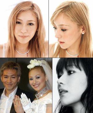 KEIKOの顔の変遷 整形過程