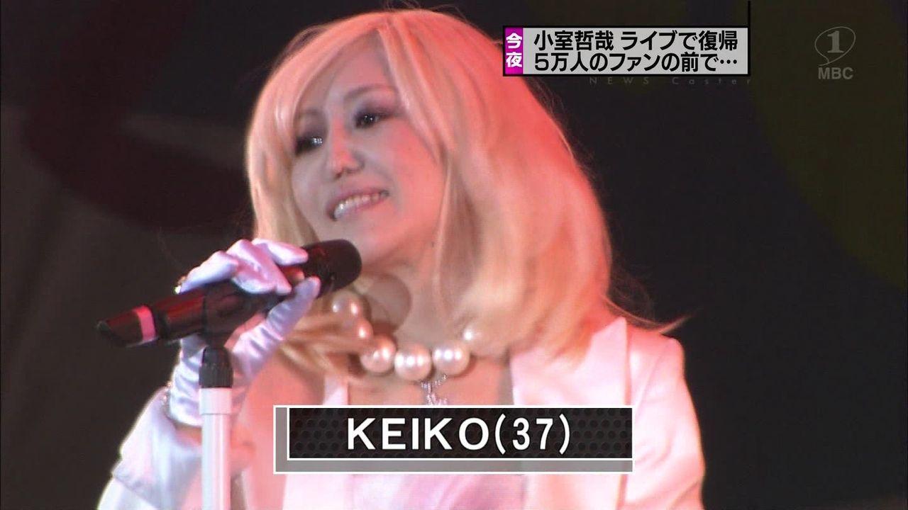 整形崩れ?小室哲哉が復活したライブで歌うKEIKOの鼻がつぶれてる