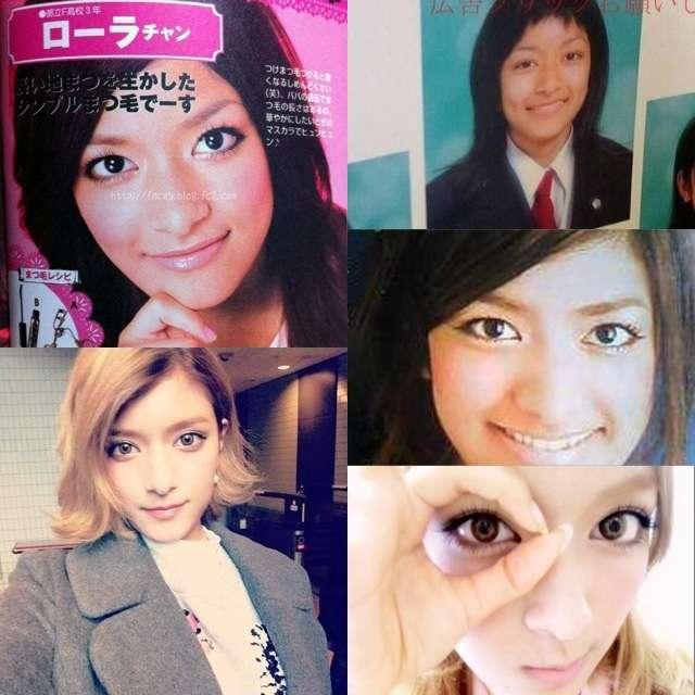 ローラの顔の変遷 整形