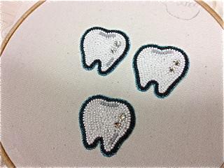 歯修正済み