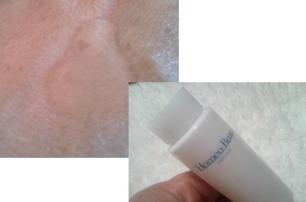 ホメオバウ 化粧水