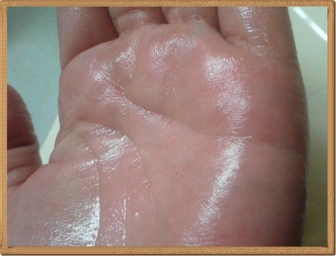 みんなの肌潤糖を塗っている手