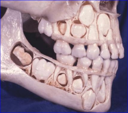 乳歯生え変わり