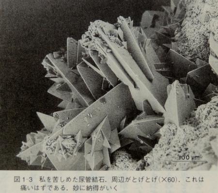 N3982尿管結石