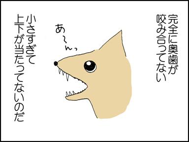 92歯-2