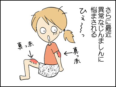 119アレルギー-2