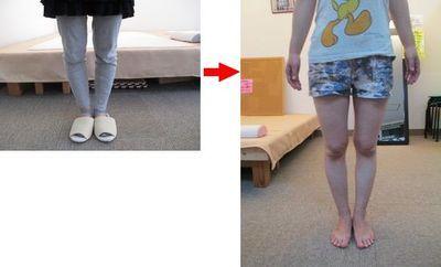 ◆『身体の動かし方』ひとつで、人生はでっかく変わる!ハピアーストレーナー立仙佐助のブログ-北九州 ハピトレ 健康 美容 姿勢 躾 O脚