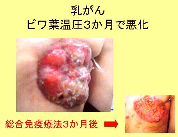 乳がん末期