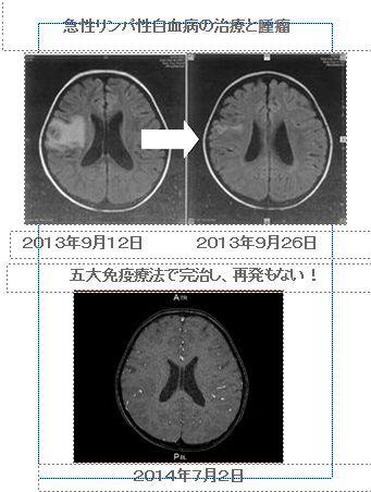 脳、腫瘤 RI7月2日