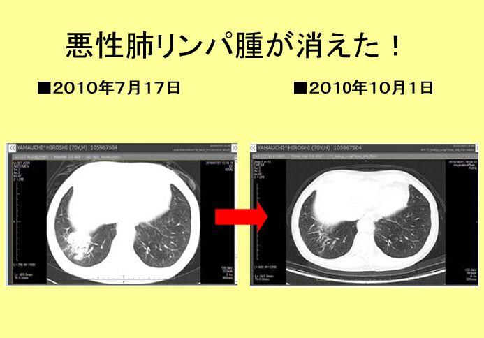 肺リンパ腫