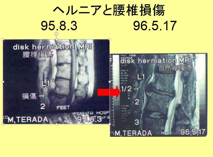 腰椎損傷。