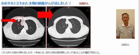 肺腺癌丸山
